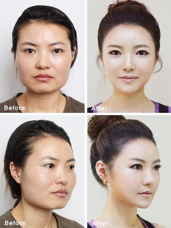 Avant après chirurgie Corée du Sud