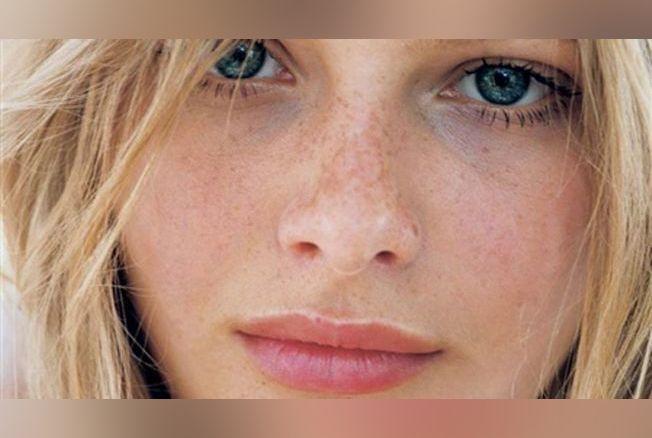 36016dfc4b14 Adolescents   conseils pour une belle peau - Beauté - Version Femina