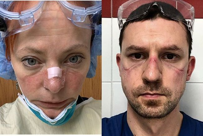 Coronavirus : ces visages des personnels soignants font le tour du monde et témoignent de l'impensable dans les hôpitaux
